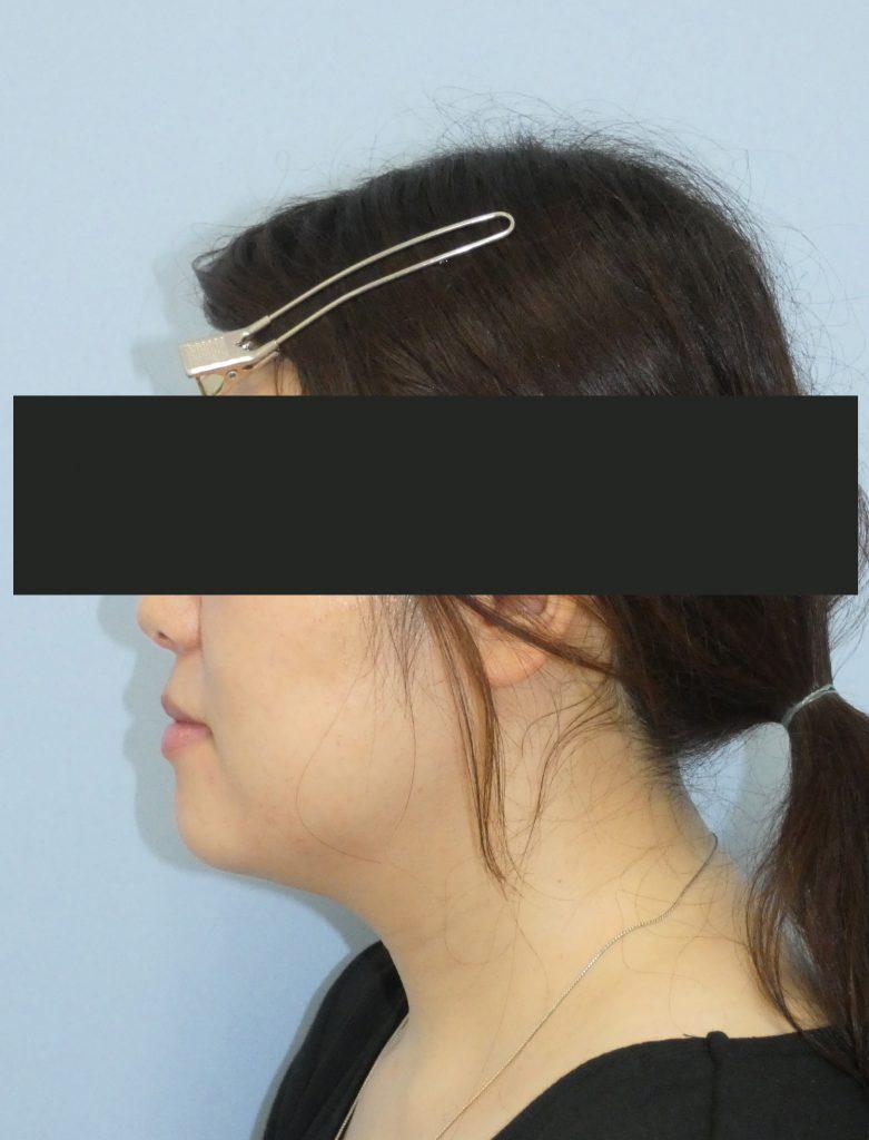 顔 - 脂肪吸引 症例写真(手術後1ヵ月)(横)
