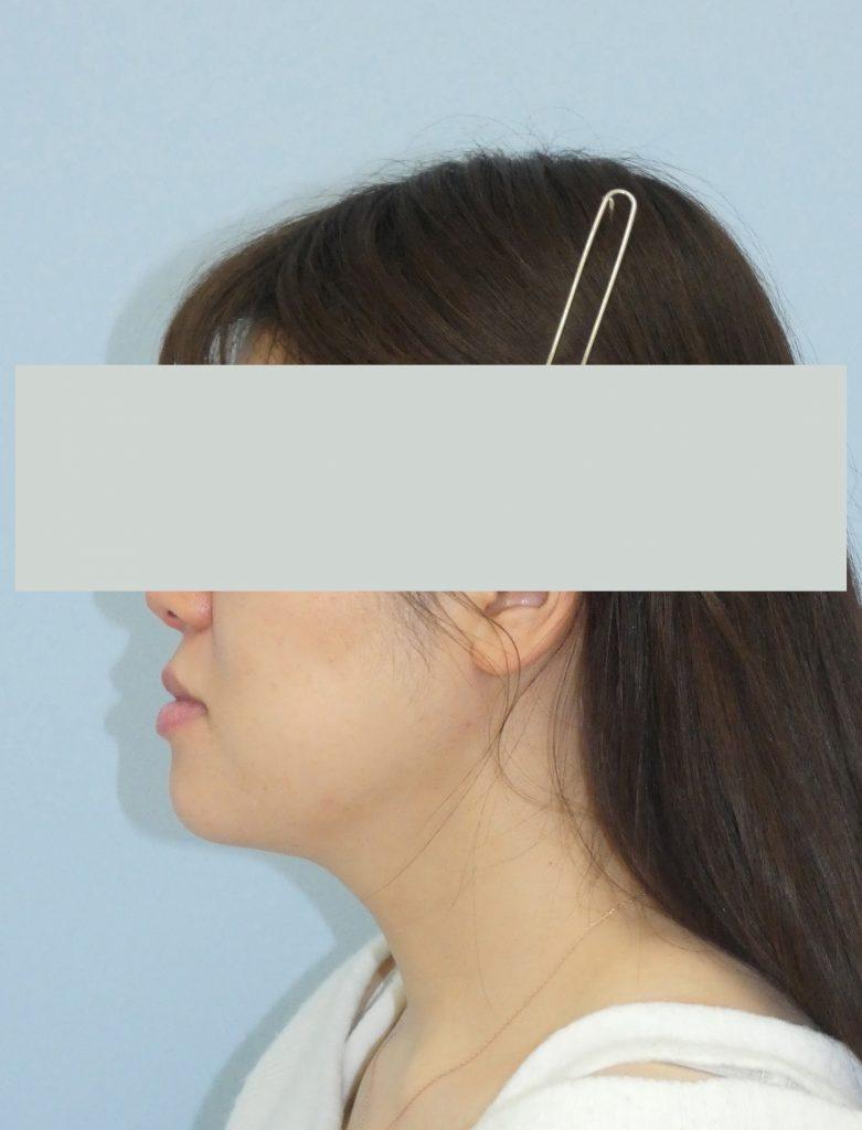 顔 - 脂肪吸引 症例写真(手術後5ヵ月)(横)