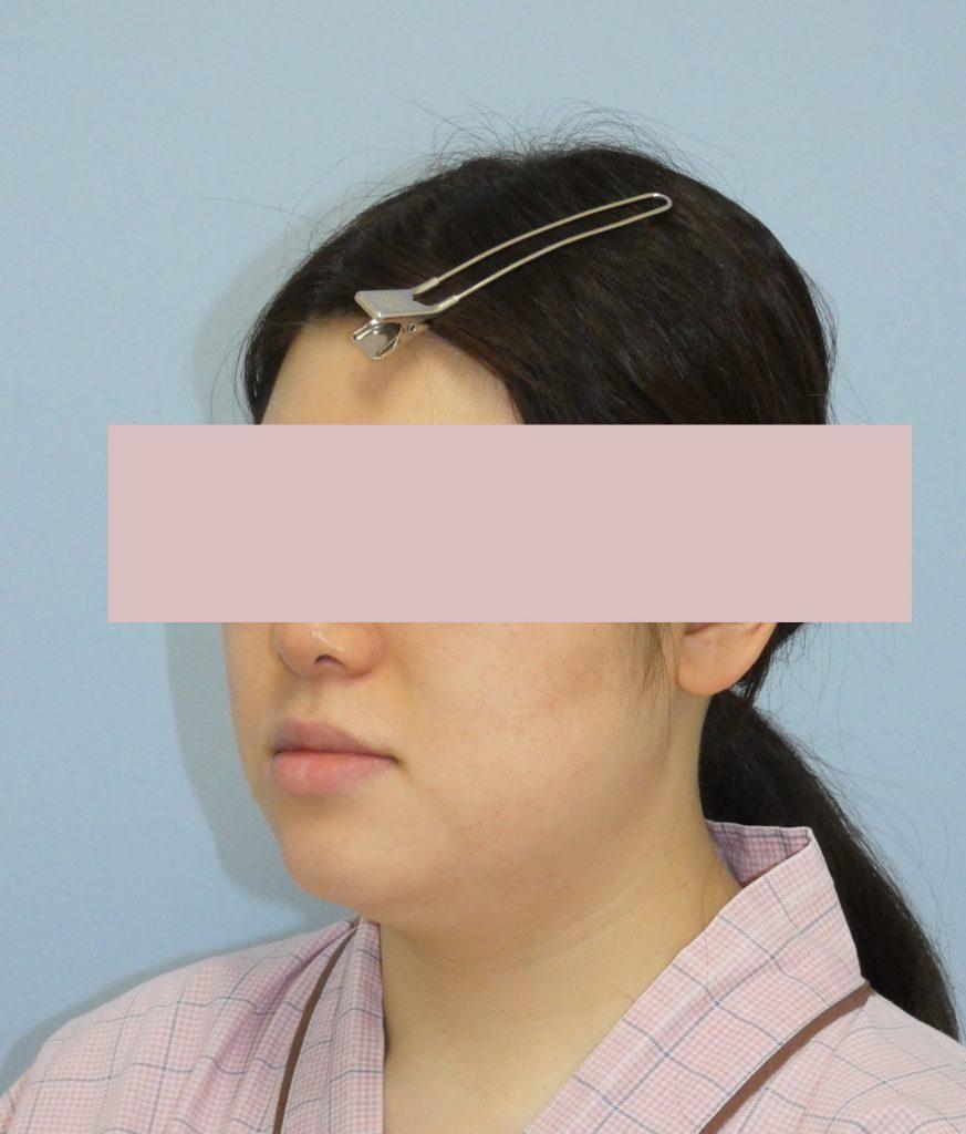 顔の脂肪吸引 29歳 162cm 69kg