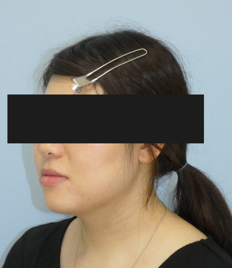 顔 - 脂肪吸引 症例写真(手術後1ヵ月)(斜め)
