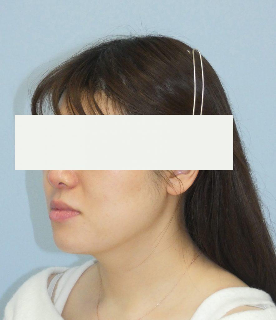 顔 - 脂肪吸引 症例写真(手術後5ヵ月)(斜め)