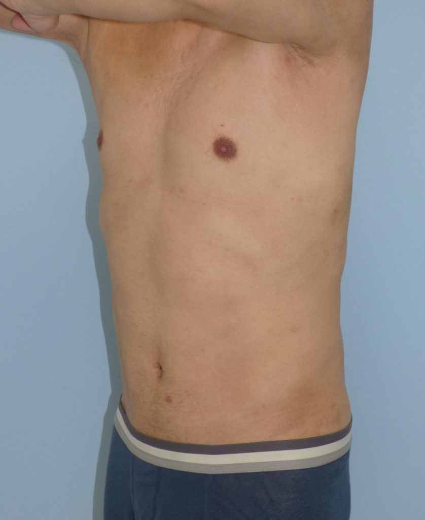 お腹 - 脂肪吸引 症例写真(手術後9ヵ月)(斜め)