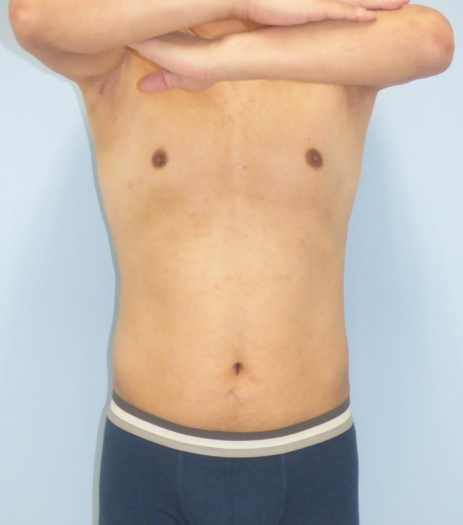 お腹 - 脂肪吸引 症例写真(手術前)(正面)