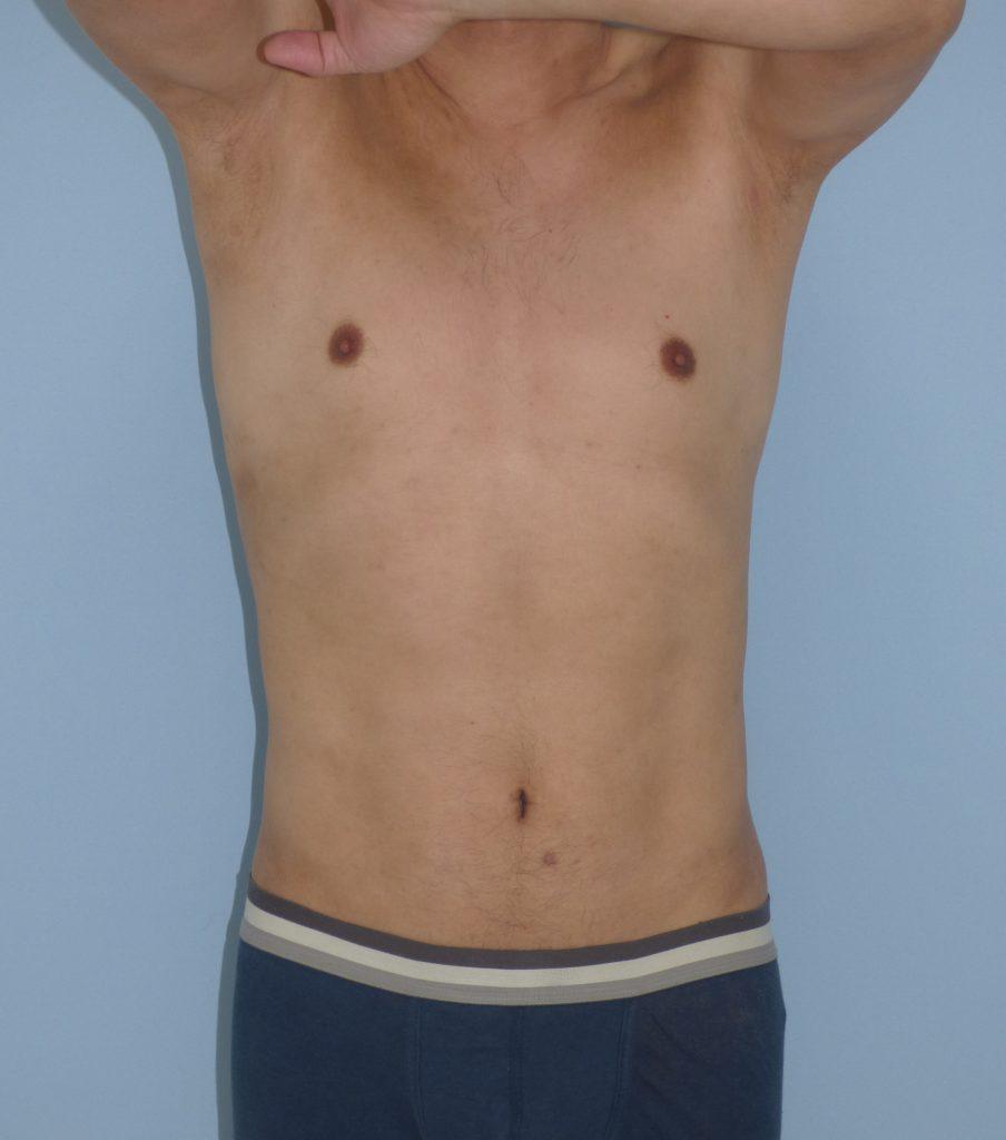 お腹 - 脂肪吸引 症例写真(手術後9ヵ月)(正面)