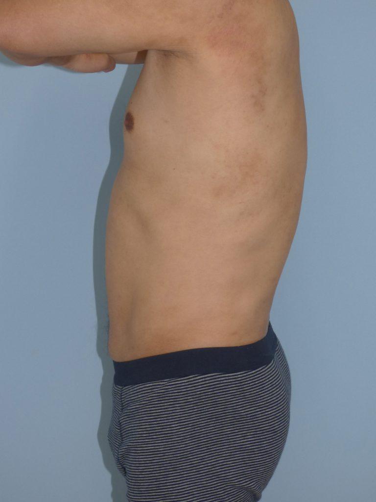 お腹 - 脂肪吸引 症例写真(手術後7ヵ月)(横)