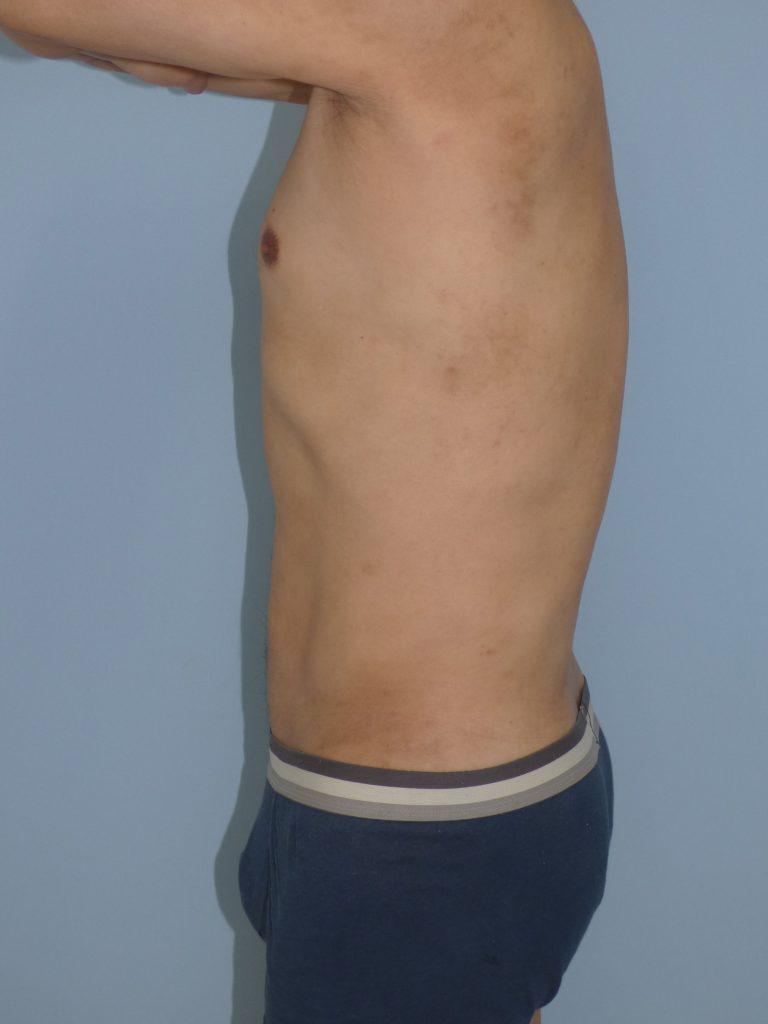 お腹 - 脂肪吸引 症例写真(手術後9ヵ月)(横)