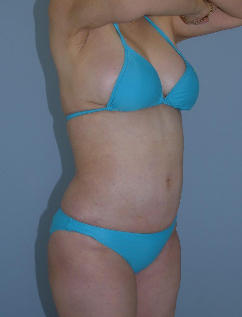 お腹 - 脂肪吸引 症例写真(手術後1ヵ月)(斜め)