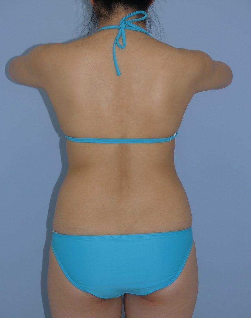 腰・太もも内側・膝の脂肪吸引 31歳 163cm 60kg