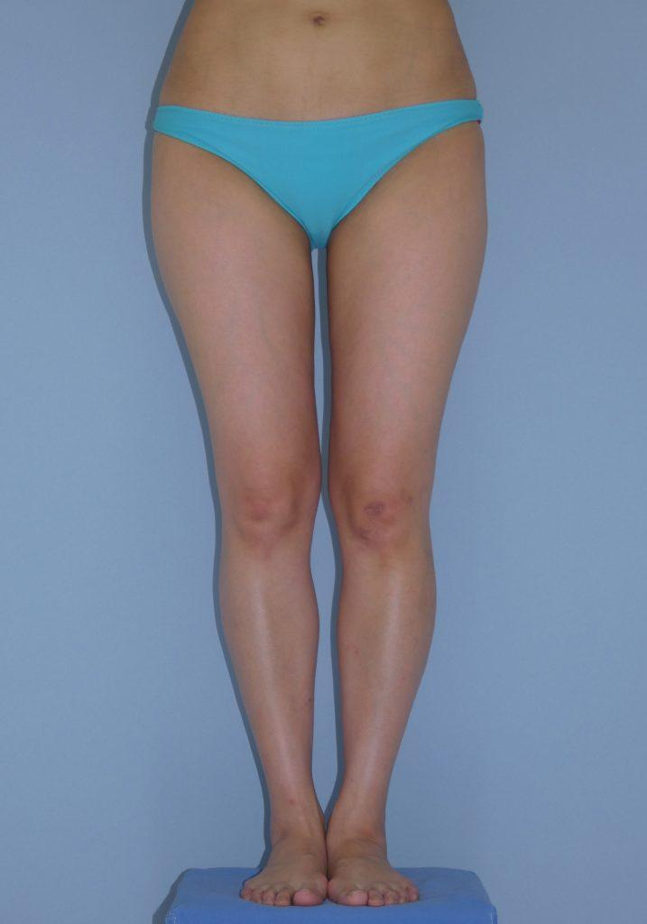 太もも - 脂肪吸引 症例写真(手術後3ヵ月)(正面)