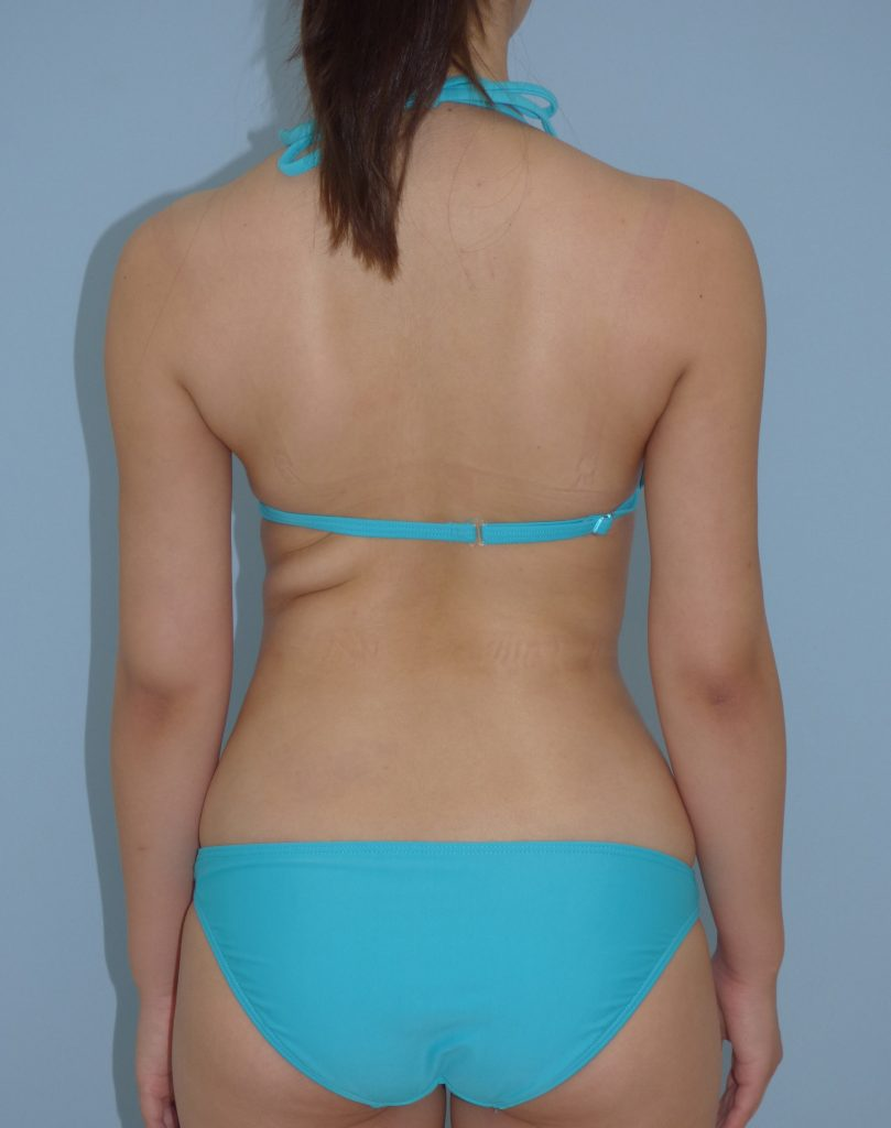 二の腕 - 脂肪吸引 症例写真(手術後1ヵ月)(後面)
