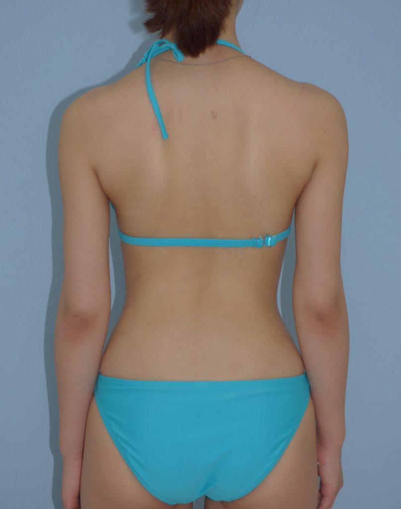 二の腕 - 脂肪吸引 症例写真(手術後6ヵ月)(後面)