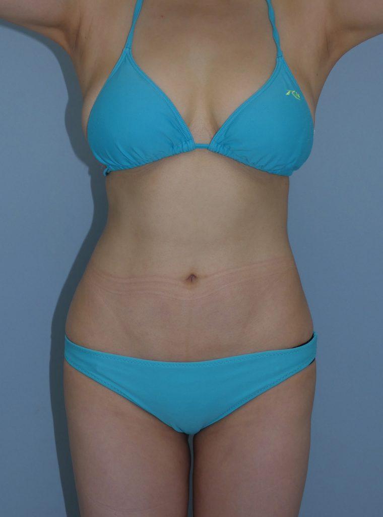 お腹 - 脂肪吸引 症例写真(手術後6ヵ月)(正面)