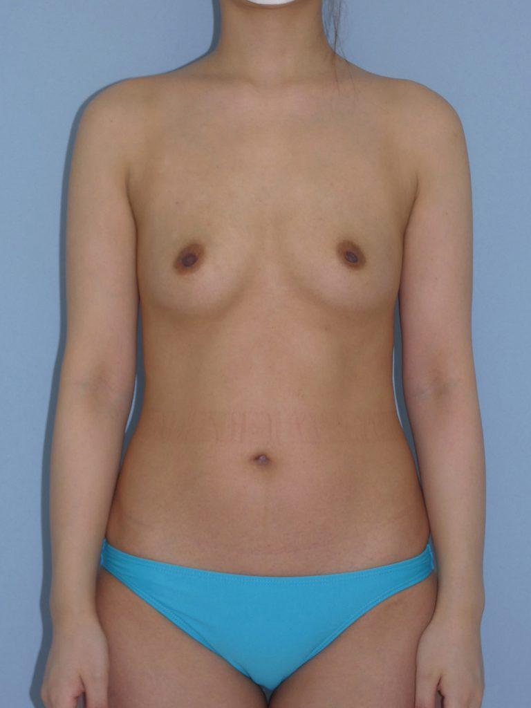 豊胸術(脂肪注入法) 27歳 163cm 56kg