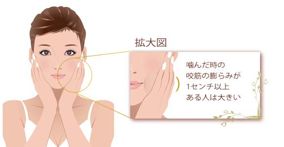 小顔&エラ治療|ボトックス注射